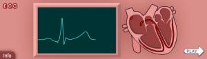 EKG-Elektrokardiogramm-Nobelpreis-Lernspiel